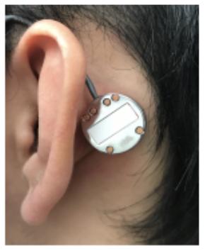 Wearable Ear Microphone
