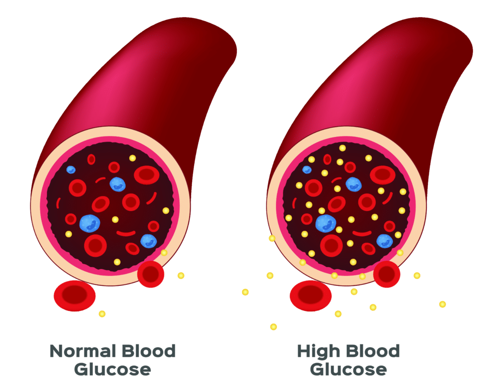Normal vs. High Blood Glucose