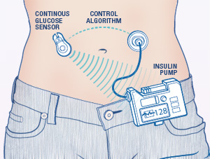 Closed-loop Artificial Pancreas