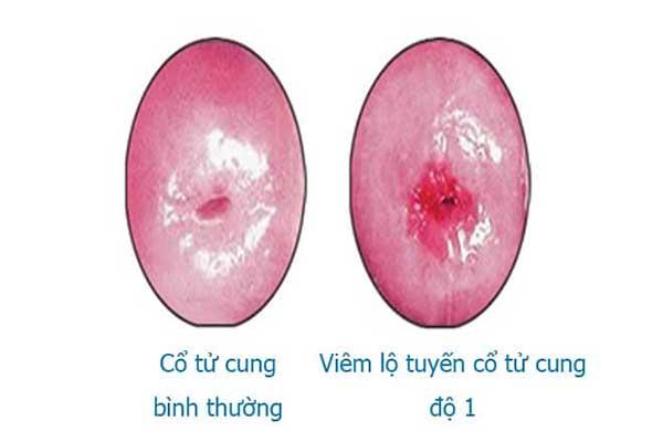 Tìm hiểu viêm lộ tuyến cổ tử cung