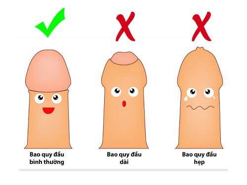 Phẫu thuật cắt bao quy đầu ở nam giới là gì?