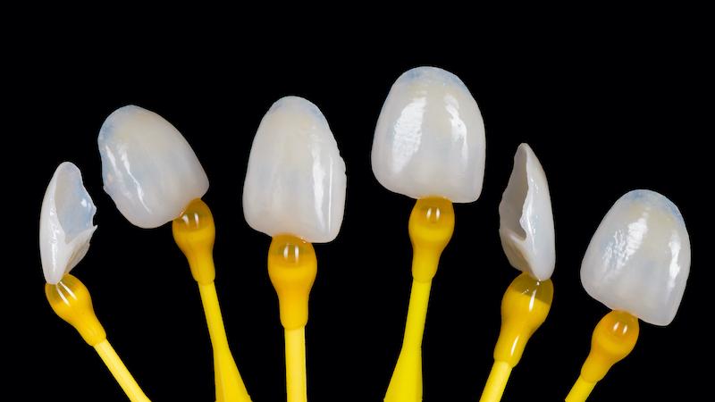 dental-veneers-intellidentsia