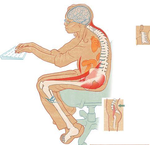 Poor sitting posture. (Image from Washington Post.)