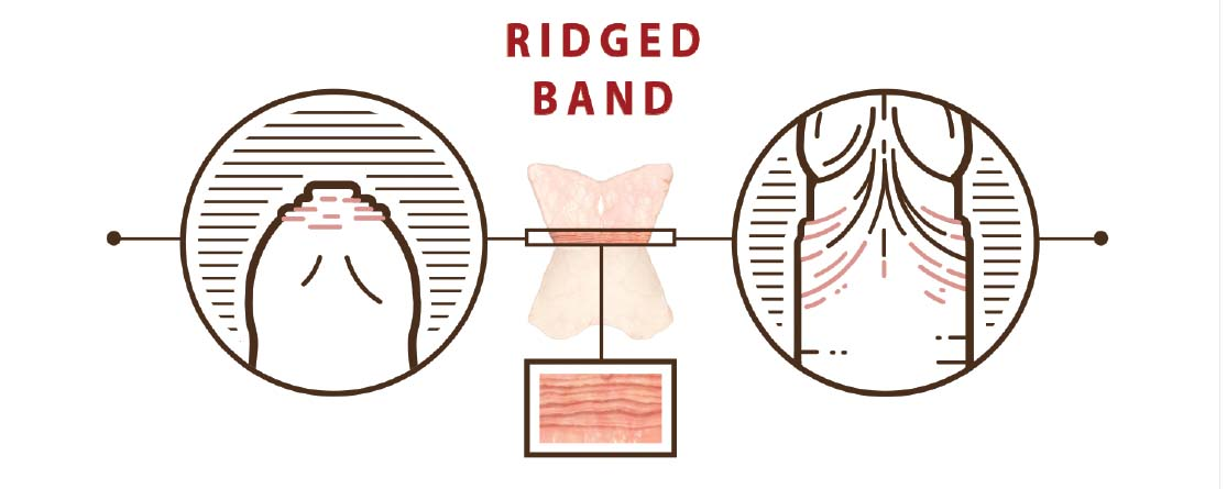 Segment illustrating the ridged band structure, texture and location in context of the overall foreskin anatomy.