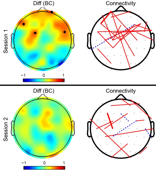 Mid-Task Break Improves Global Integration of Functional Connectivity in Lower Alpha Band