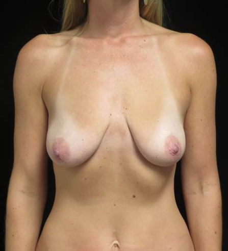 breast fat transfer before