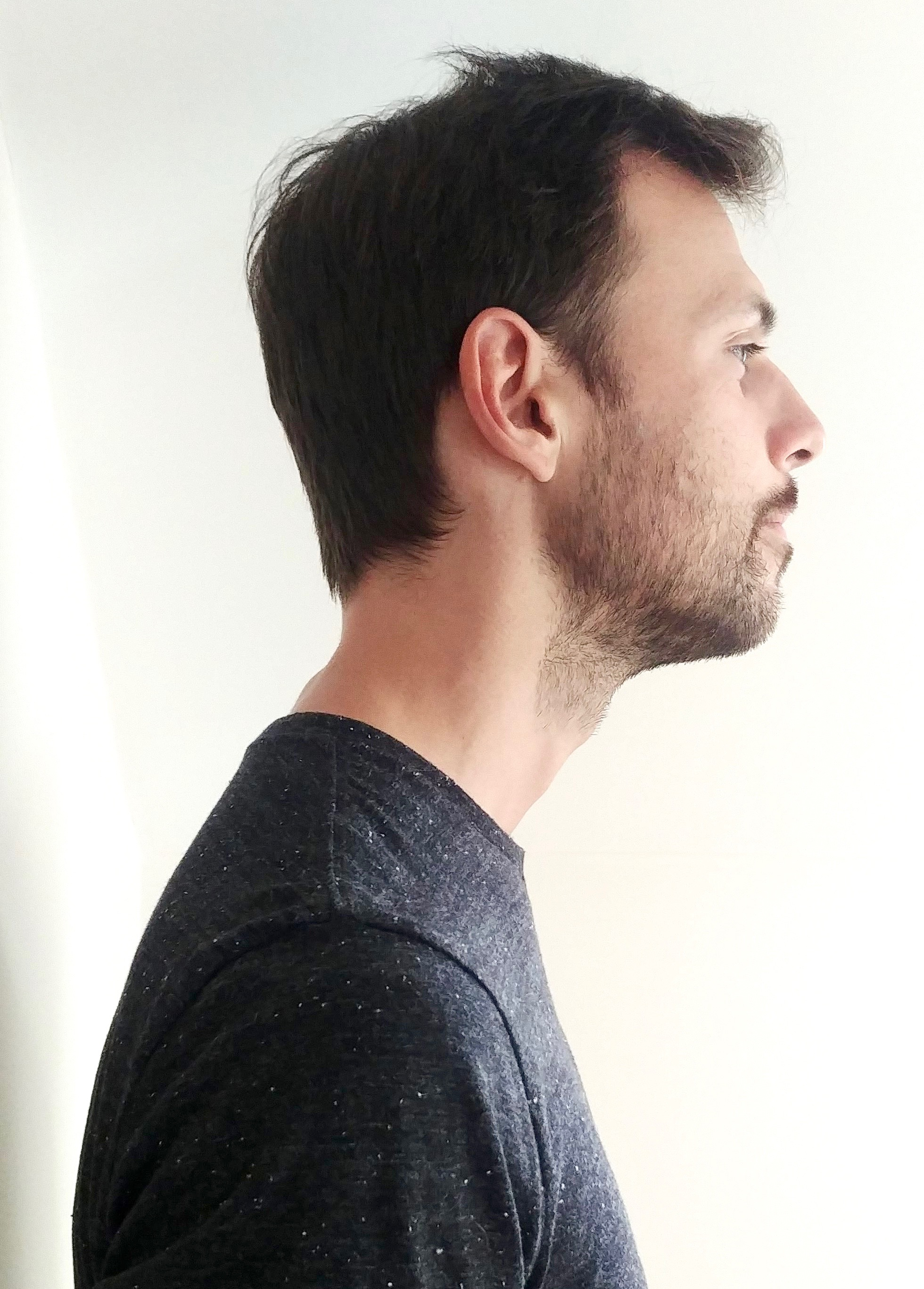 Better posture, chin forward image