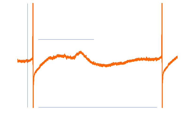 Integrated cardiac signal detection algorithms - 3Brain