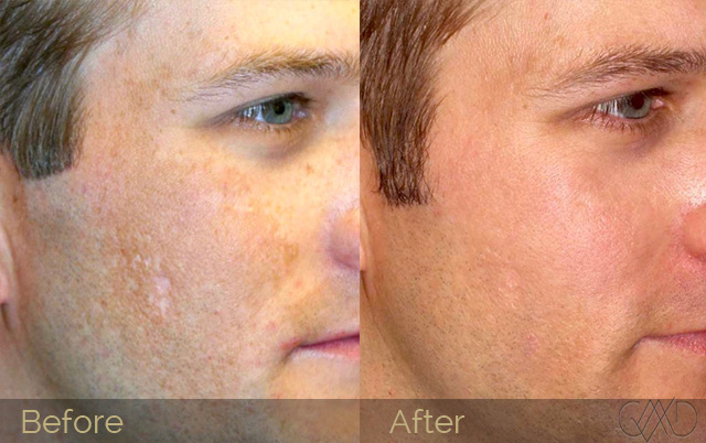 Micro needling before and after photos at Debora's Beauty Studio