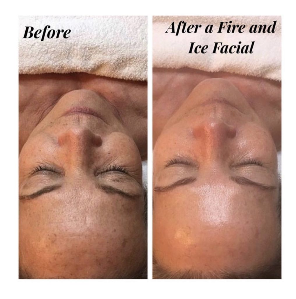 Fire and ice facial in London performed by a skin care specialist.