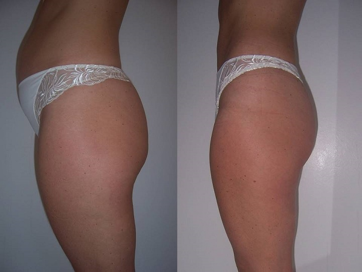 Before and after photos after universal body contour wrap at Debora's Beauty Studio.
