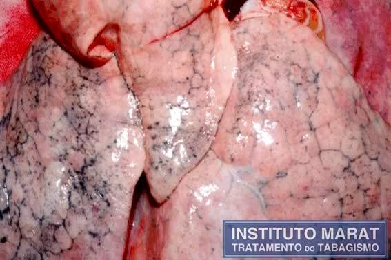 Aspecto de uma parte de pulmão pertencente a um adulto não fumante.