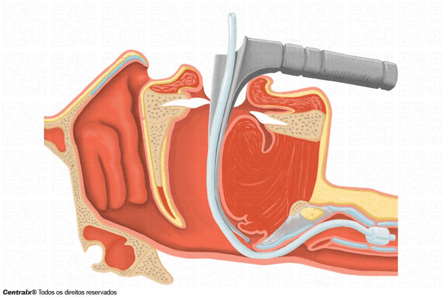 Intubação endotraqueal, utilizada para Covid-19
