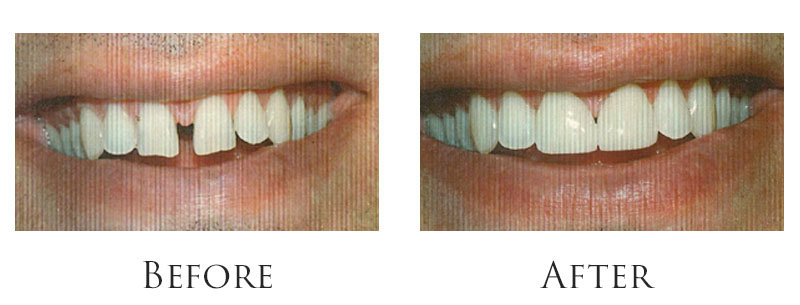 Dr. Reese Smile Makeover Indianapolis