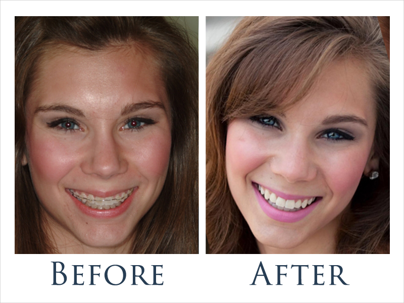 Before and After Ceramic Braces