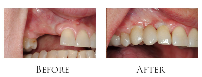 Multiple tooth replacement with dental implants