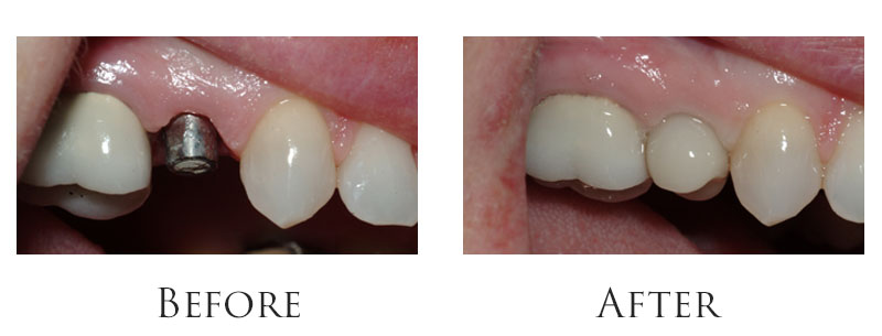 Single tooth replacement with an implant.
