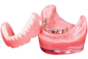 Lower Implant Overdenture
