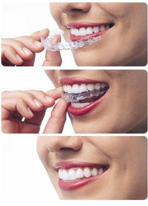 Braces and Invisalign Indianapolis