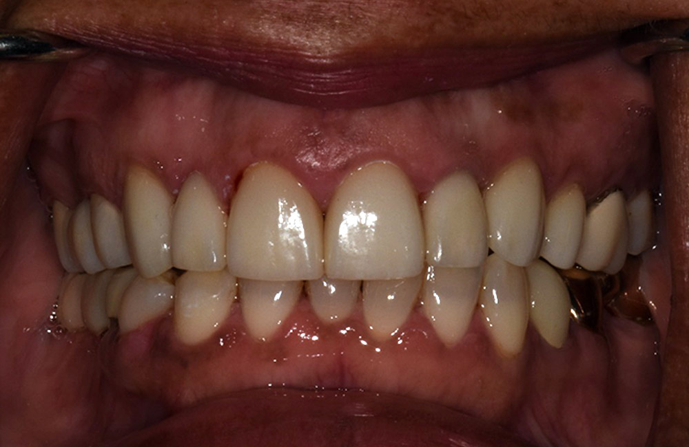 After image of cosmetic dental procedure