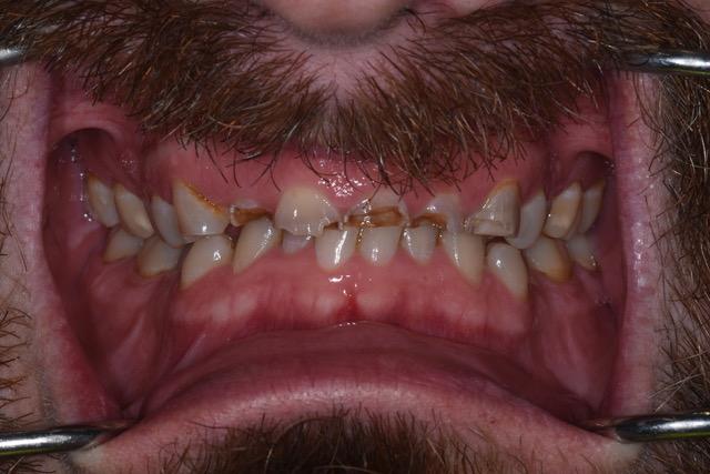Teeth before receiving implants and dental bridge