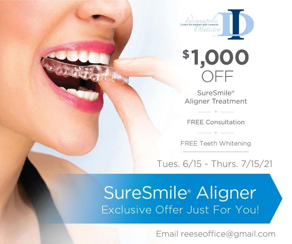 $1,000 off SureSmile Aligner Treatment