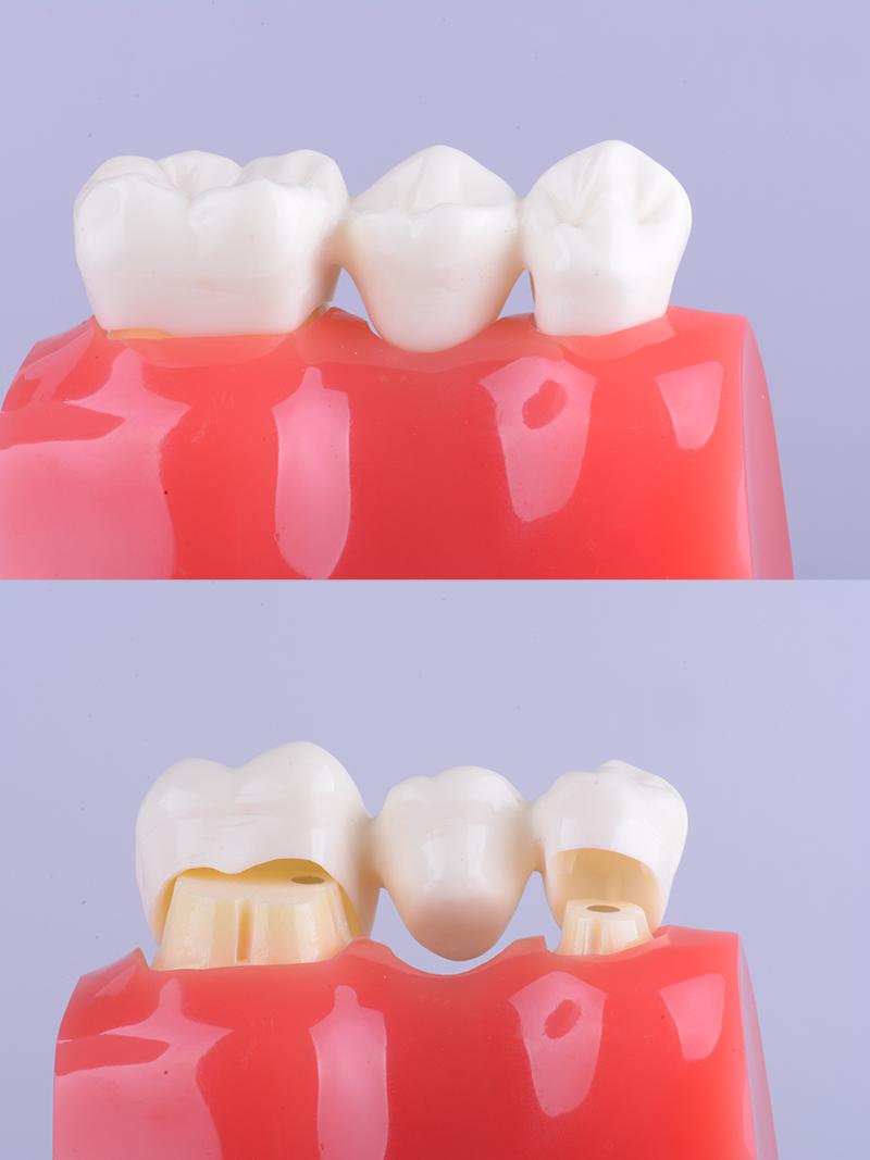 Dental bridges in tijuana representation
