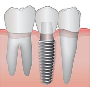 Digital View of Dental Implants