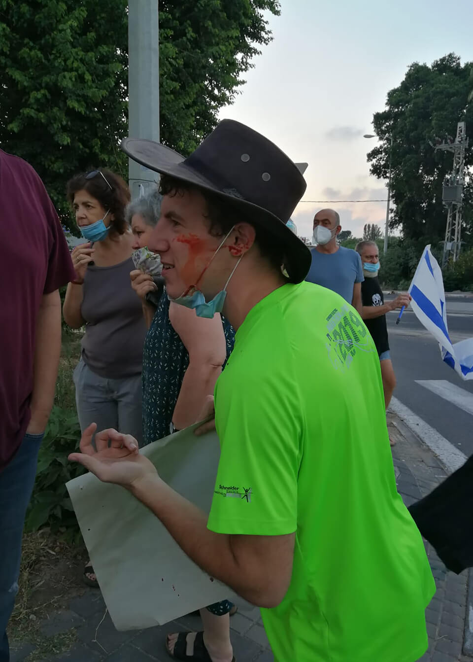 """""""היה לו רצח בעיניים"""". קדוש לאחר שנפגע בפניו בהפגנה (צילום: נדין וול)"""