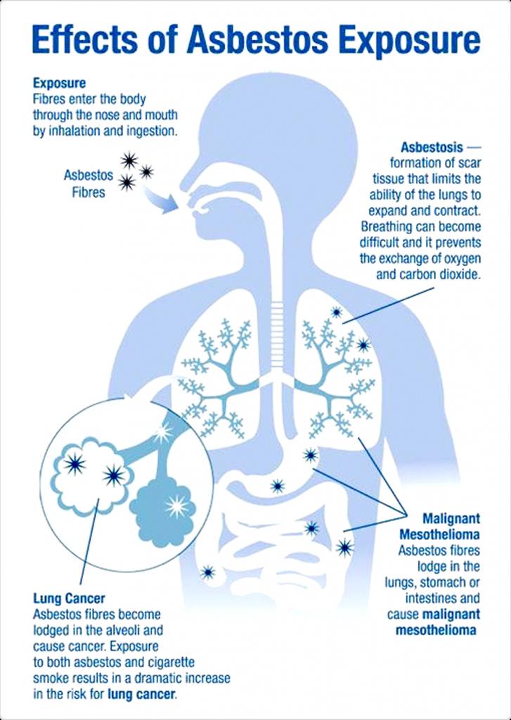 asbestos-medical-diagram