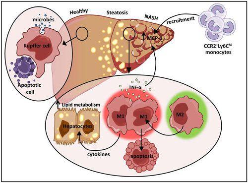 Tế bào Kupffer với vai trò chủ chốt trong việc gây ra các bệnh nguy hiểm về gan và làm tăng chỉ số men gan