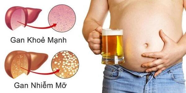 Thực phẩm người bệnh gan nhiễm mỡ nên kiêng ăn