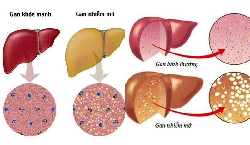 Gan nhiễm mỡ và gan bình thường