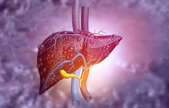 Phương pháp chuẩn đoán gan nhiễm mỡ