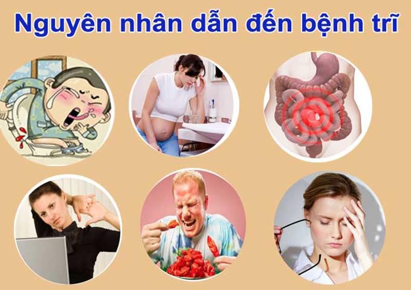 Nguyên nhân dẫn đến mắc bệnh trĩ