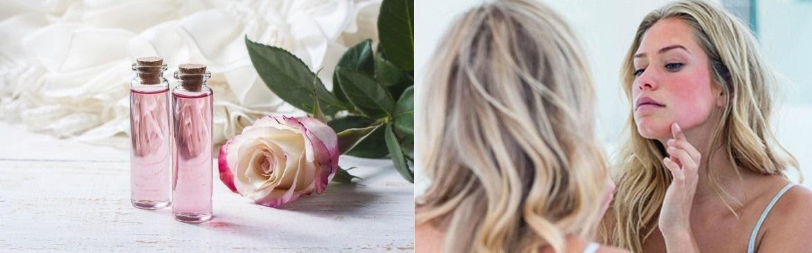 Vì sao phải sử dụng nước hoa hồng dành cho da nhạy cảm?