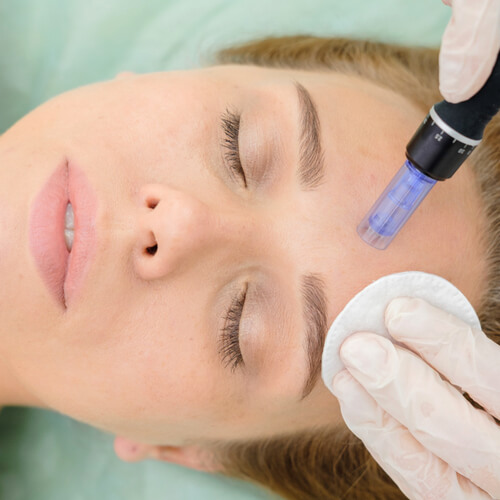 face undergoing microneedling treatment