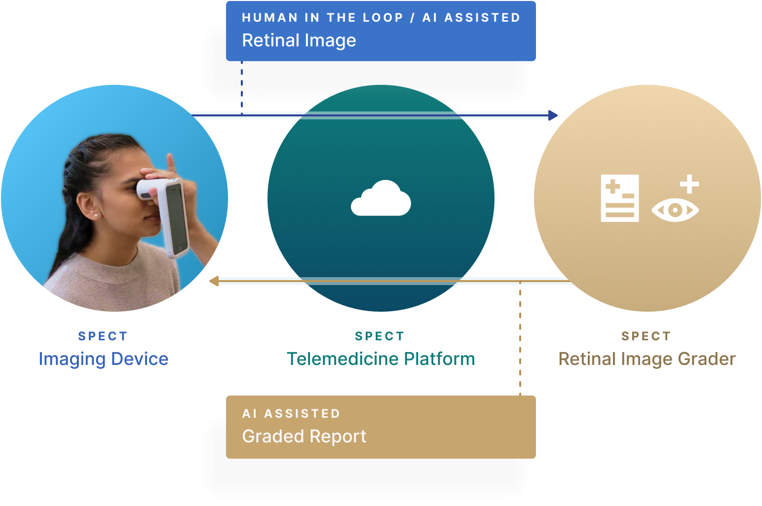 Diagram of Spect's Platform.  1. Spect's Imaging Device 2. Spect's Telemedicine Platform 3. Spect's Retinal Image Grader  The Imaging Device (1) sends a human in the loop/AI assisted retinal image to the telemedicine platform, which is then graded by Spect's retinal image grader, sending a graded report back to the patient and operator.