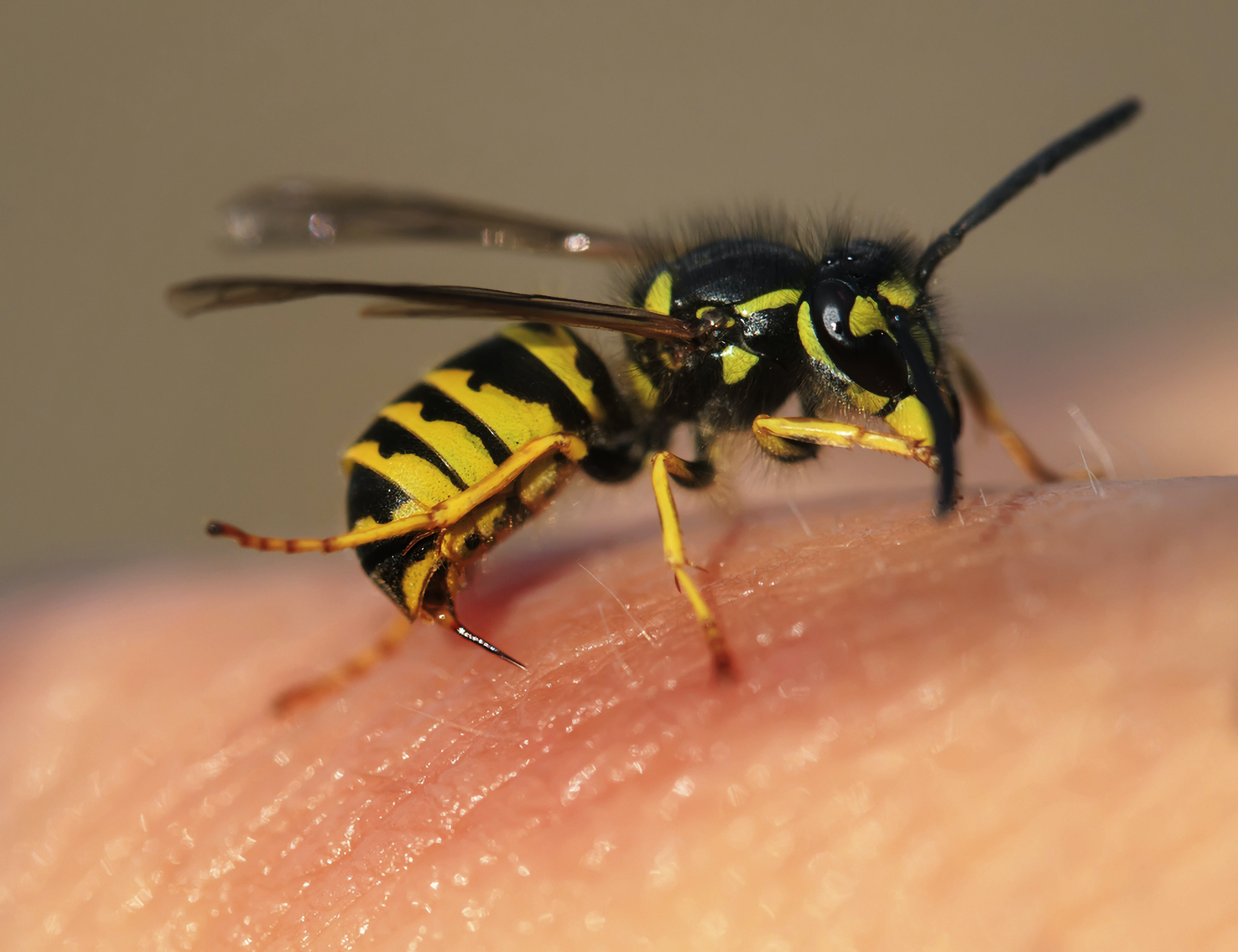 Wasp on skin with stinger out