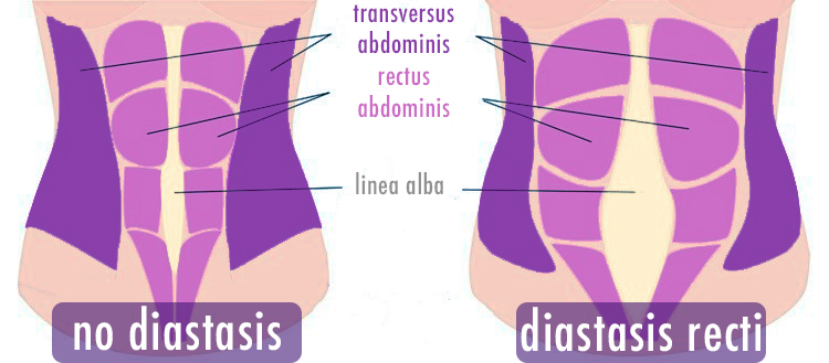 Tummy showing linea alba with and without diastasis recti