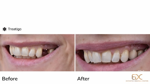 Dental Impants in Croatia Before and After