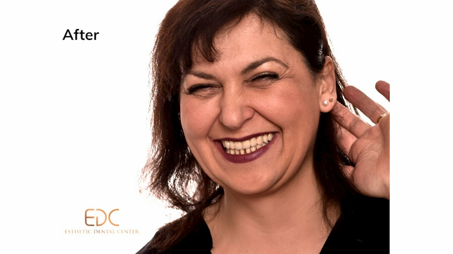 All on 4 dental implants Croatia Before and After