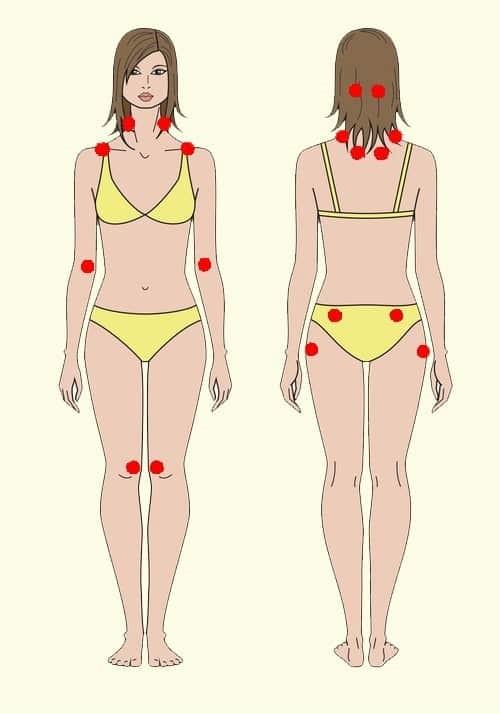 pontos-fibromialgia