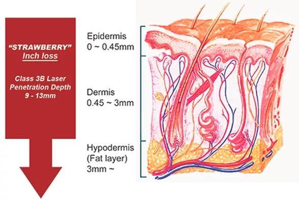 Diagram of skin and fat cells and how the laser works