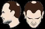 chute de cheveux Norwood Hamilton stade 5