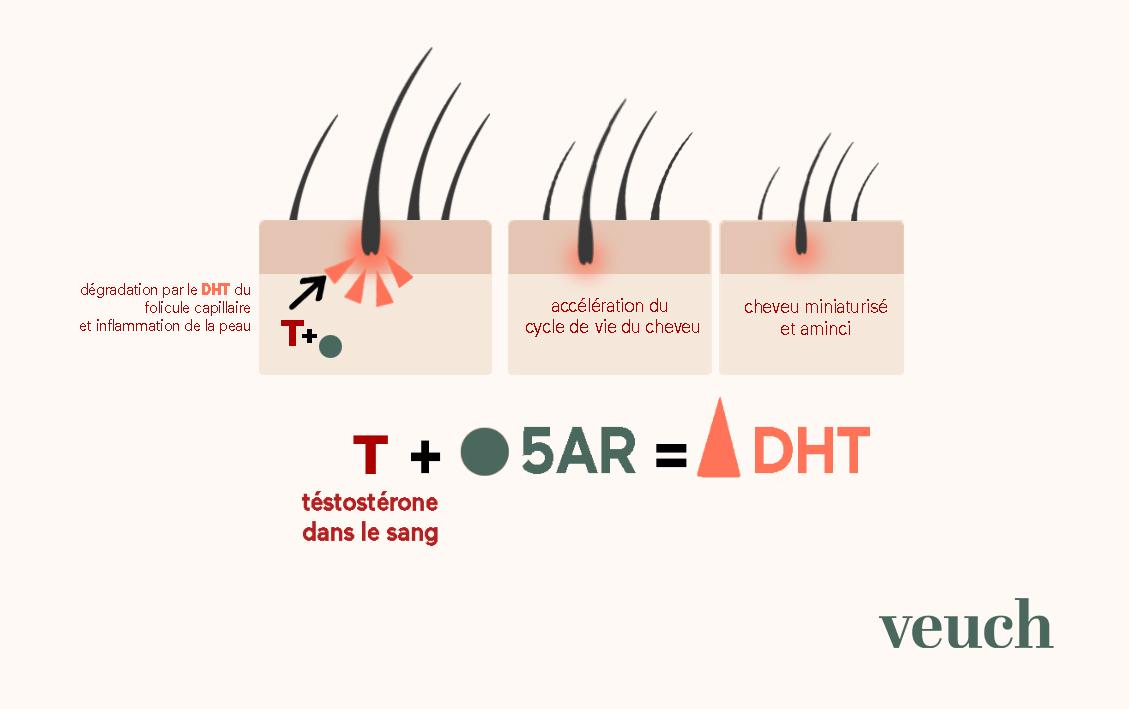 chute perte cheveu cheveux traitement efficace soin