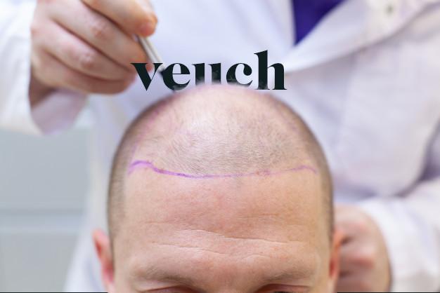 après la greffe de cheveux soins naturels chute de cheveux hommes