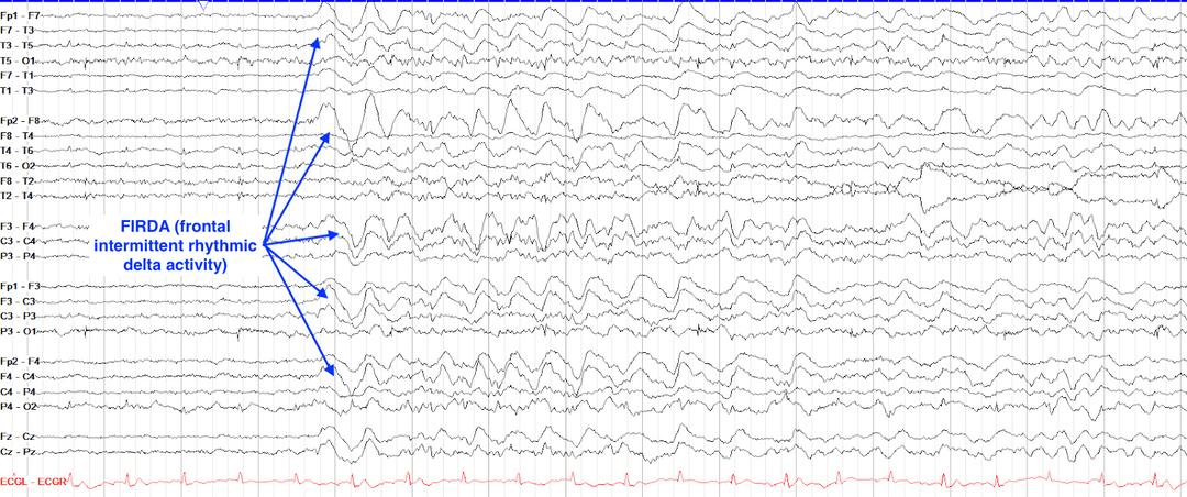 Frontal intermittent rhythmic delta activity (FIRDA)
