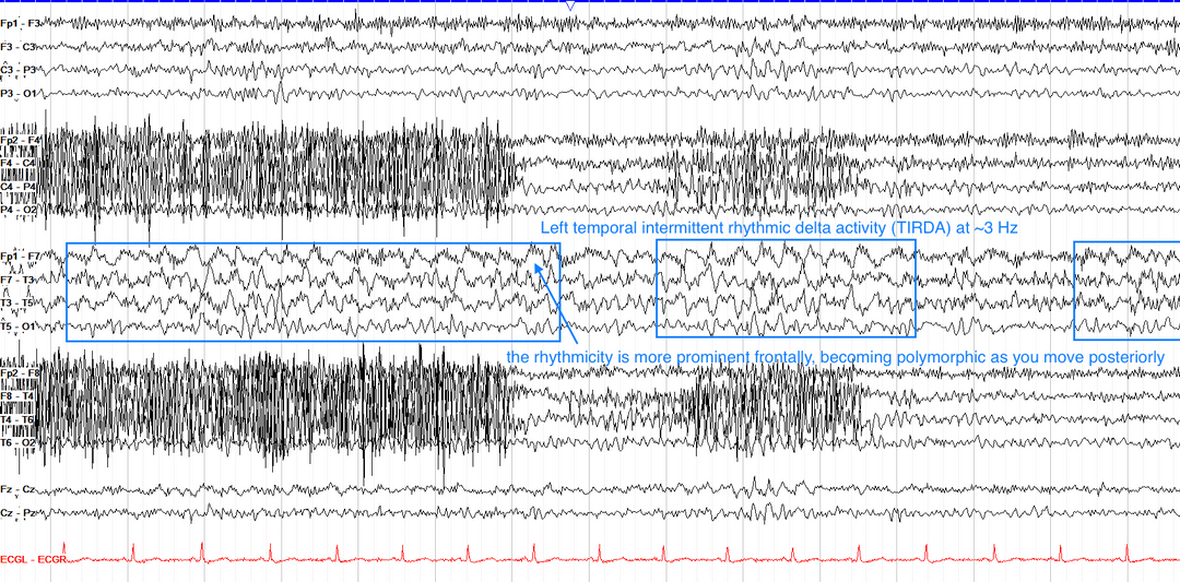 Left temporal intermittent rhythmic delta activity (TIRDA)
