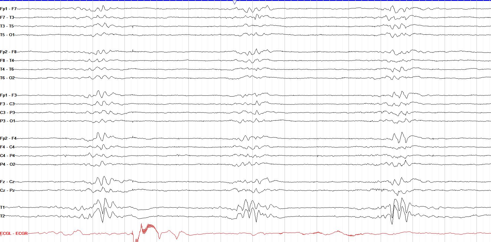 photic driving 9 Hz